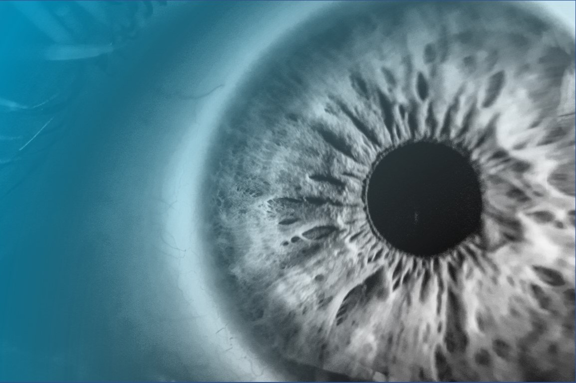 Glaucoma ocular implant clears phase I hurdle